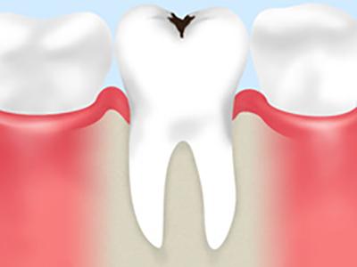 歯の表面では、常に「脱灰」と「再石灰化」が繰り返されています。