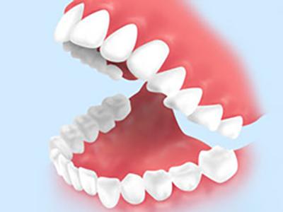 口腔内の衛生状態の検査