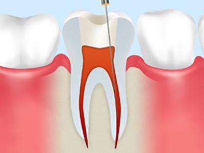 歯の神経除去