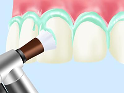歯科医院での予防・メインテナンス