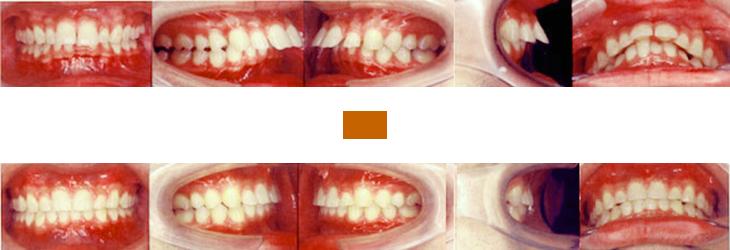 出っ歯を矯正した例